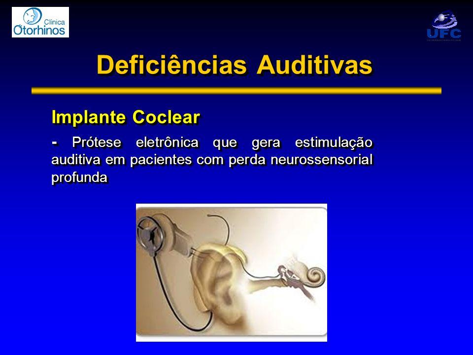 Deficiências Auditivas Implante Coclear - Prótese eletrônica que gera estimulação auditiva em pacientes com perda neurossensorial profunda Implante Co