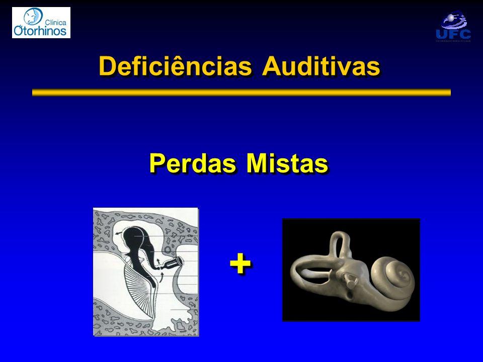 Deficiências Auditivas Perdas Mistas + +