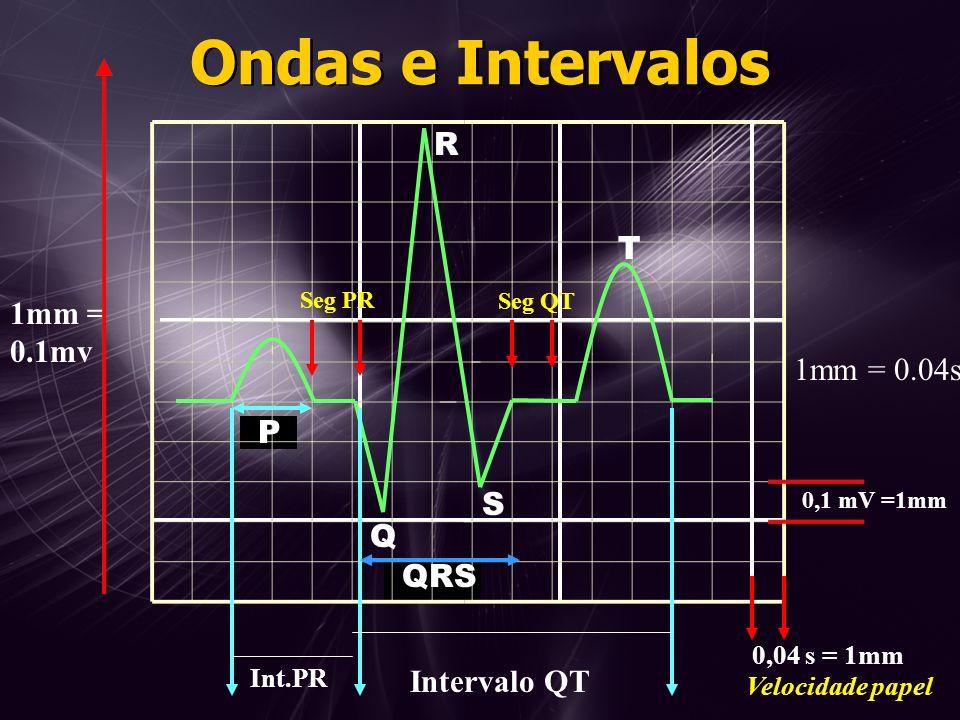 1mm = 0.04s 1mm = 0.1mv Int.PR P Intervalo QT Velocidade papel QRS Ondas e Intervalos Q S R T 0,1 mV =1mm 0,04 s = 1mm Seg PR Seg QT