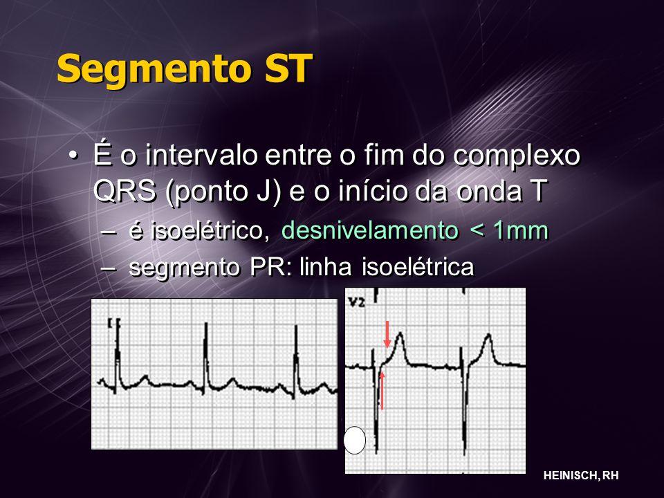 Segmento ST É o intervalo entre o fim do complexo QRS (ponto J) e o início da onda T – é isoelétrico, desnivelamento < 1mm – segmento PR: linha isoelétrica É o intervalo entre o fim do complexo QRS (ponto J) e o início da onda T – é isoelétrico, desnivelamento < 1mm – segmento PR: linha isoelétrica HEINISCH, RH