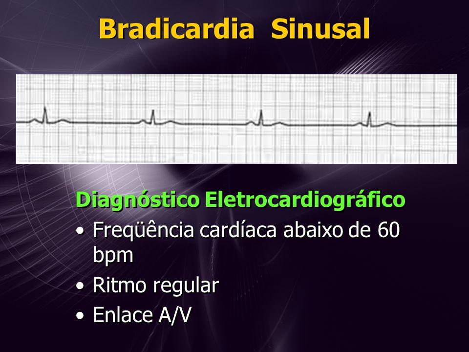 Bradicardia Sinusal Diagnóstico Eletrocardiográfico Freqüência cardíaca abaixo de 60 bpm Ritmo regular Enlace A/V Diagnóstico Eletrocardiográfico Freqüência cardíaca abaixo de 60 bpm Ritmo regular Enlace A/V