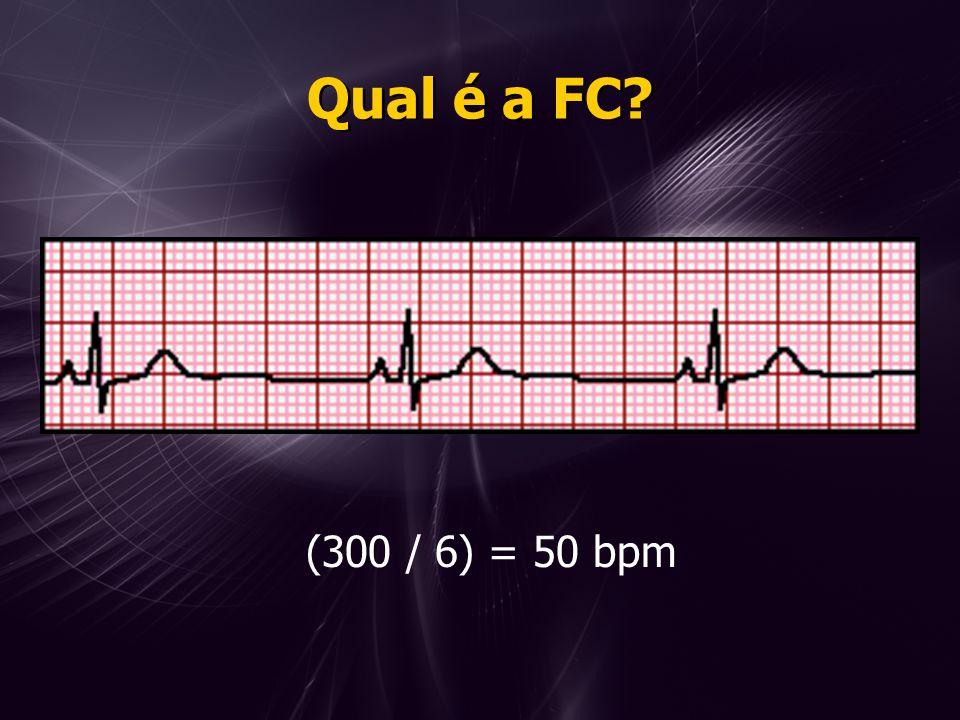 Qual é a FC? (300 / 6) = 50 bpm