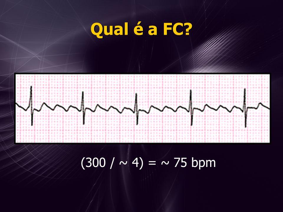 Qual é a FC? (300 / ~ 4) = ~ 75 bpm