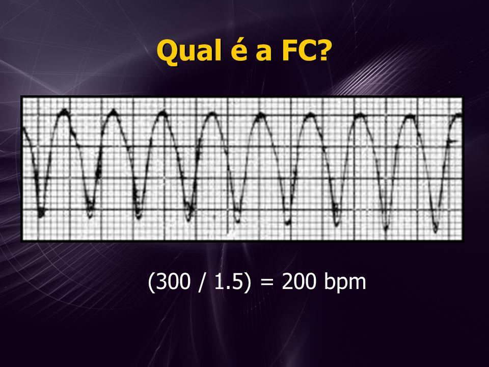 Qual é a FC? (300 / 1.5) = 200 bpm