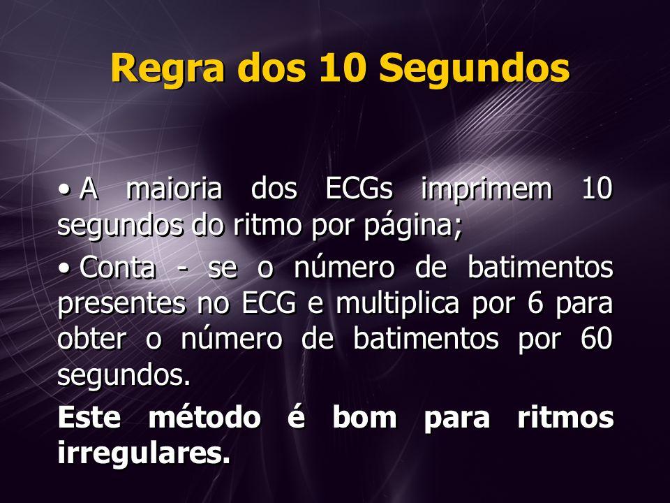 Regra dos 10 Segundos A maioria dos ECGs imprimem 10 segundos do ritmo por página; Conta - se o número de batimentos presentes no ECG e multiplica por 6 para obter o número de batimentos por 60 segundos.