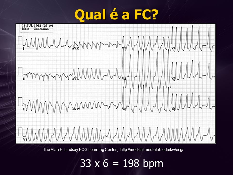 Qual é a FC? 33 x 6 = 198 bpm The Alan E. Lindsay ECG Learning Center ; http://medstat.med.utah.edu/kw/ecg/