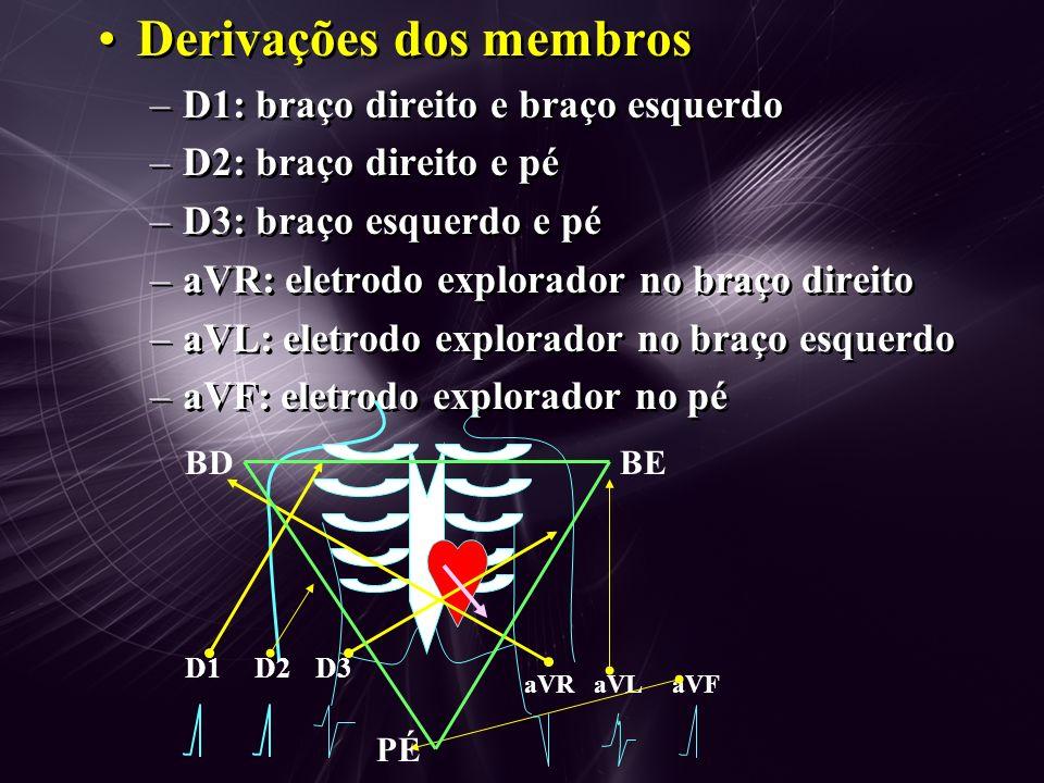 Derivações dos membros –D1: braço direito e braço esquerdo –D2: braço direito e pé –D3: braço esquerdo e pé –aVR: eletrodo explorador no braço direito –aVL: eletrodo explorador no braço esquerdo –aVF: eletrodo explorador no pé Derivações dos membros –D1: braço direito e braço esquerdo –D2: braço direito e pé –D3: braço esquerdo e pé –aVR: eletrodo explorador no braço direito –aVL: eletrodo explorador no braço esquerdo –aVF: eletrodo explorador no pé BDBE D1D2D3 aVRaVLaVF PÉ