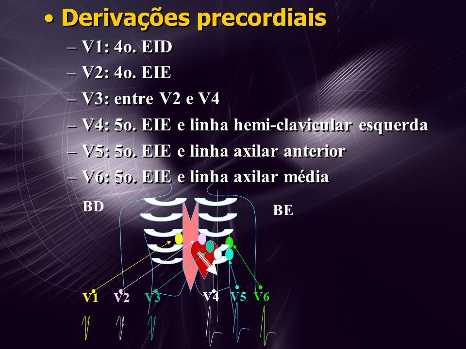 Derivações precordiais –V1: 4o.EID –V2: 4o. EIE –V3: entre V2 e V4 –V4: 5o.