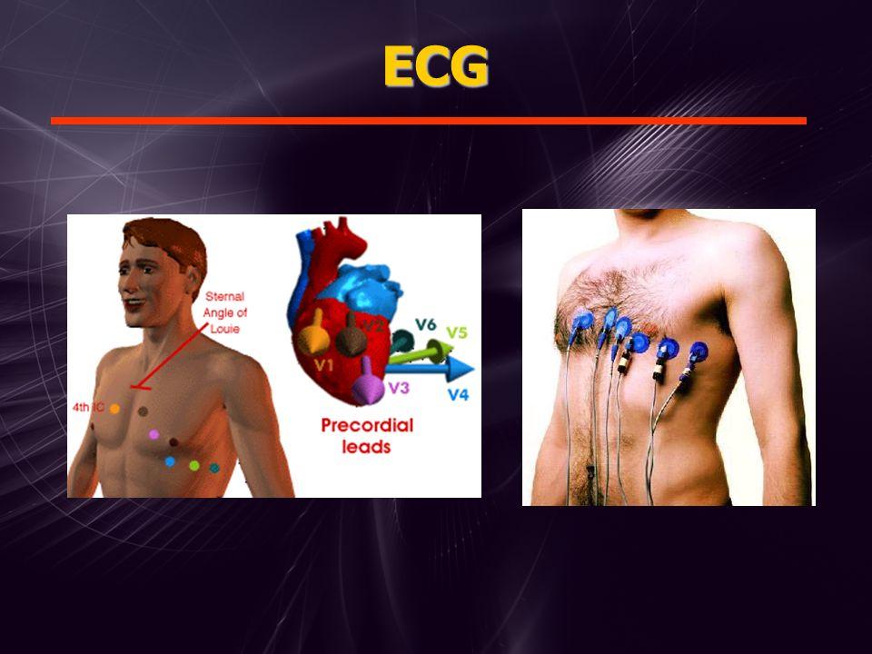 Ritmo Sinusal Diagnóstico Eletrocardiográfico Ondas P precedendo cada QRS Enlace A/V Ritmo regular (intervalos regulares entre os QRS) Freqüência entre 60 e 100 bpm Diagnóstico Eletrocardiográfico Ondas P precedendo cada QRS Enlace A/V Ritmo regular (intervalos regulares entre os QRS) Freqüência entre 60 e 100 bpm °