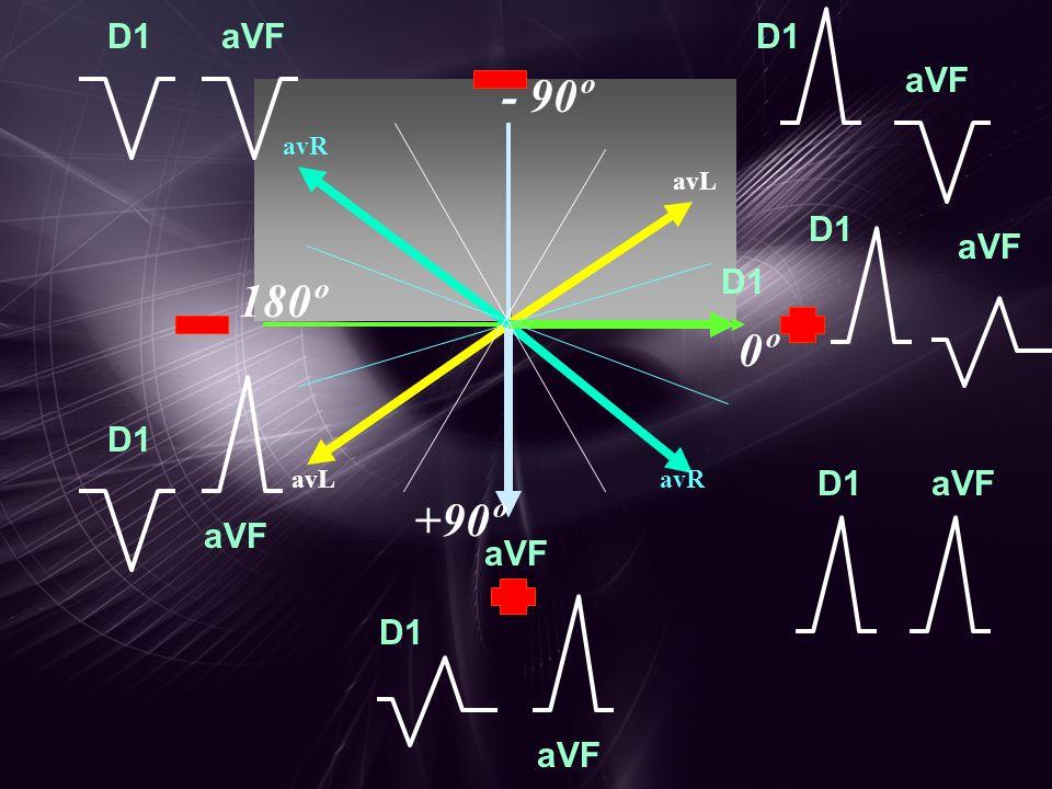 D1 aVF D1 aVF 0º 180º - 90º +90º avRavL avR avL