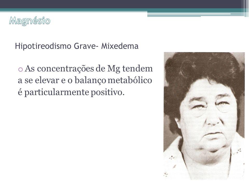 Hipotireodismo Grave- Mixedema o As concentrações de Mg tendem a se elevar e o balanço metabólico é particularmente positivo.