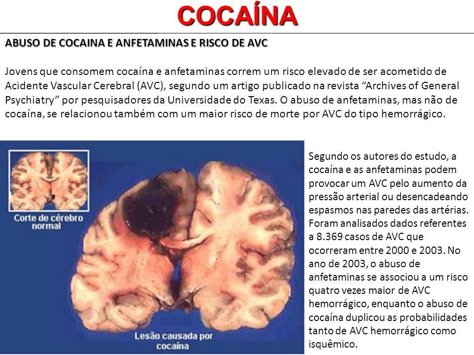 COCAÍNA ABUSO DE COCAINA E ANFETAMINAS E RISCO DE AVC Jovens que consomem cocaína e anfetaminas correm um risco elevado de ser acometido de Acidente V