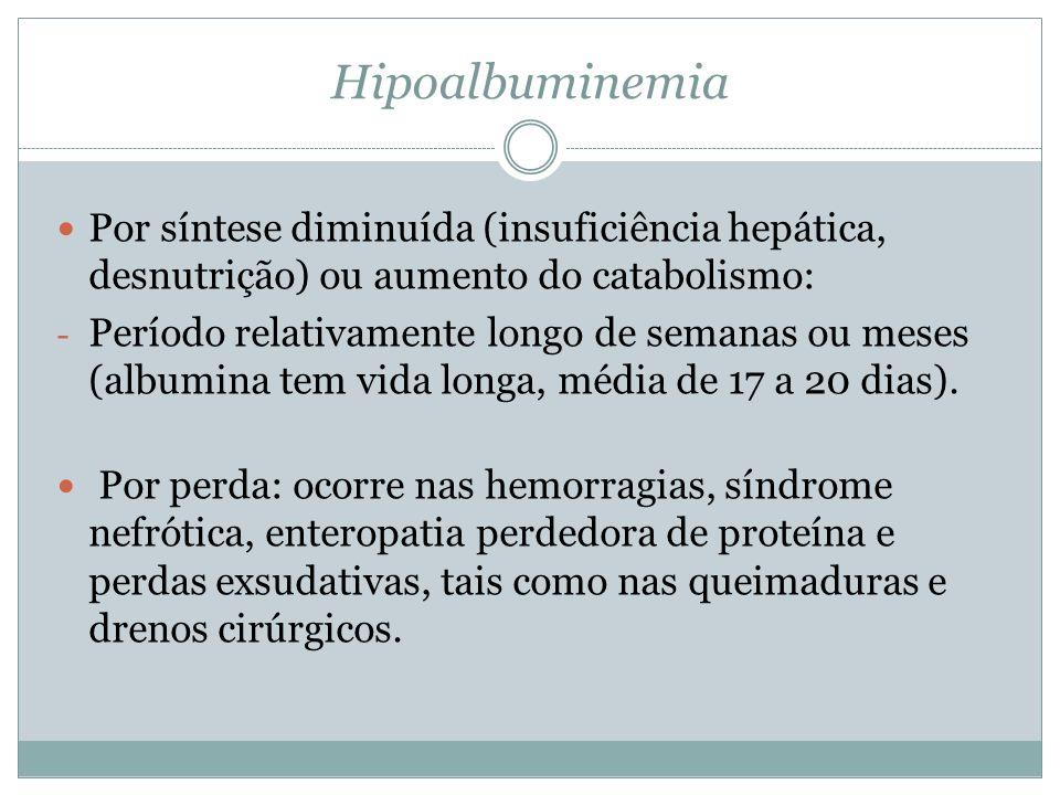 Hipoalbuminemia Por síntese diminuída (insuficiência hepática, desnutrição) ou aumento do catabolismo: - Período relativamente longo de semanas ou meses (albumina tem vida longa, média de 17 a 20 dias).