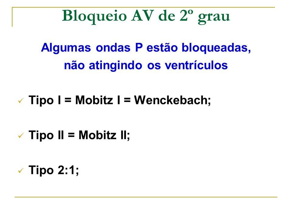 Bloqueio AV de 2º grau Algumas ondas P estão bloqueadas, não atingindo os ventrículos Tipo I = Mobitz I = Wenckebach; Tipo II = Mobitz II; Tipo 2:1;