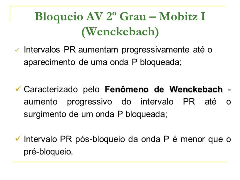 Bloqueio AV 2º Grau – Mobitz I (Wenckebach) Intervalos PR aumentam progressivamente até o aparecimento de uma onda P bloqueada; Fenômeno de Wenckebach
