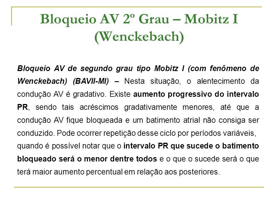 Bloqueio AV 2º Grau – Mobitz I (Wenckebach) Bloqueio AV de segundo grau tipo Mobitz I (com fenômeno de Wenckebach) (BAVII-MI) – Nesta situação, o alen