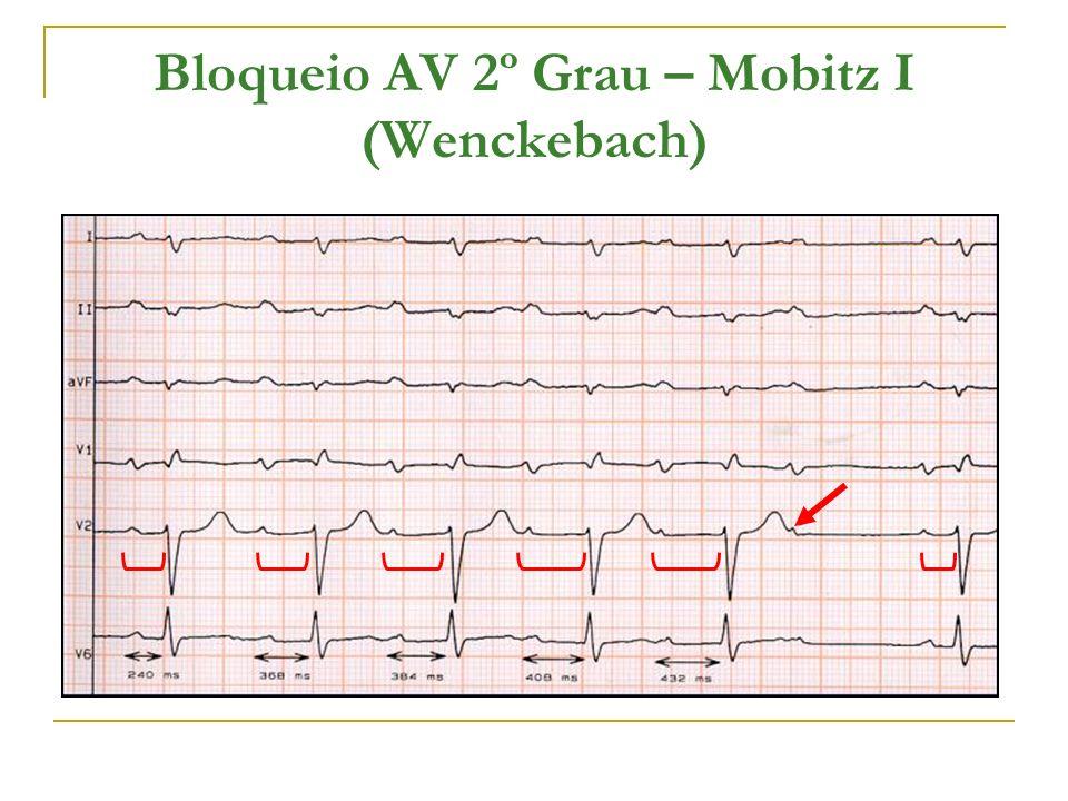 Bloqueio AV 2º Grau – Mobitz I (Wenckebach)