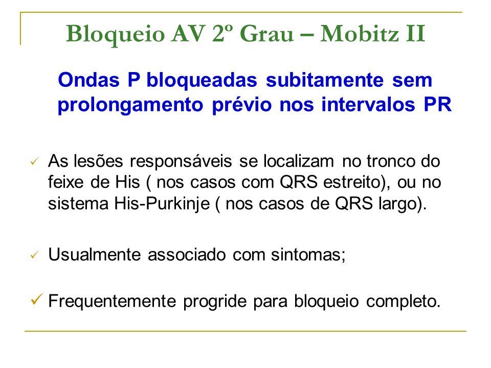 Bloqueio AV 2º Grau – Mobitz II Ondas P bloqueadas subitamente sem prolongamento prévio nos intervalos PR As lesões responsáveis se localizam no tronc