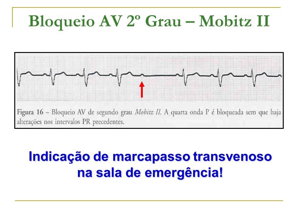 Bloqueio AV 2º Grau – Mobitz II Indicação de marcapasso transvenoso na sala de emergência!