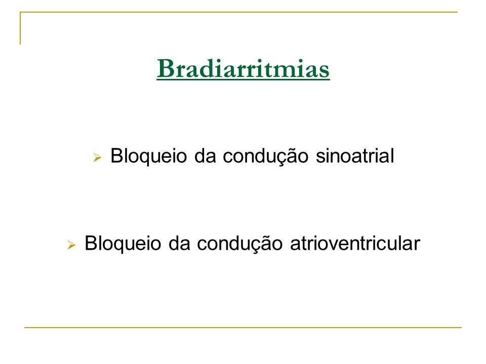 Bloqueios atrioventriculares Distúrbios da condução do impulso elétrico que ocorrem entre a despolarização atrial (onda P) e a despolarização ventricular (complexo QRS).
