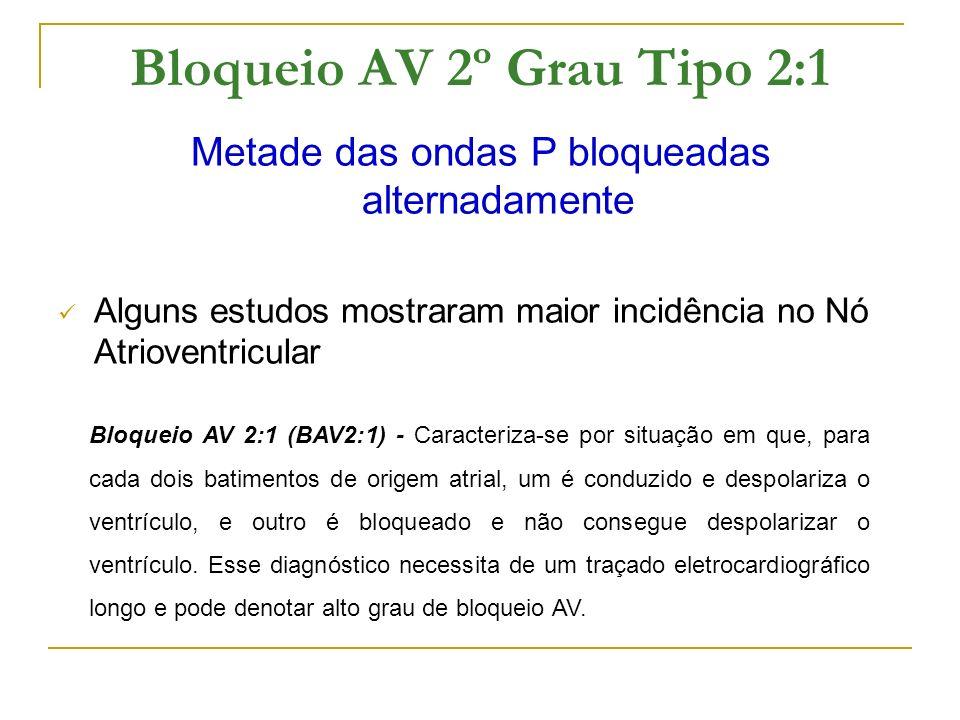 Bloqueio AV 2º Grau Tipo 2:1 Metade das ondas P bloqueadas alternadamente Alguns estudos mostraram maior incidência no Nó Atrioventricular Bloqueio AV