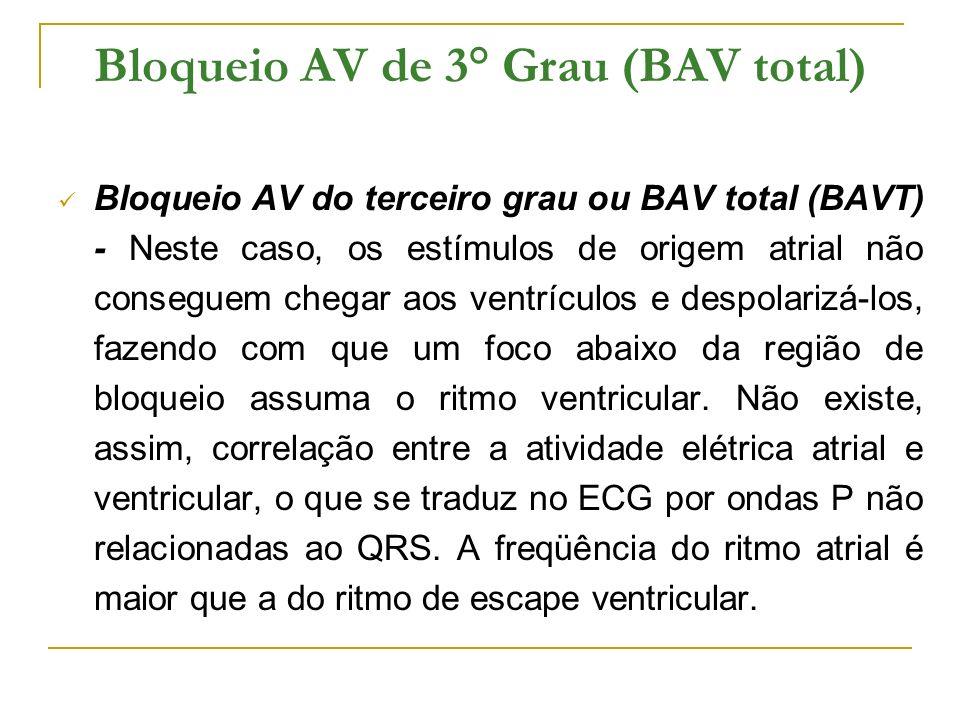 Bloqueio AV de 3° Grau (BAV total) Bloqueio AV do terceiro grau ou BAV total (BAVT) - Neste caso, os estímulos de origem atrial não conseguem chegar a