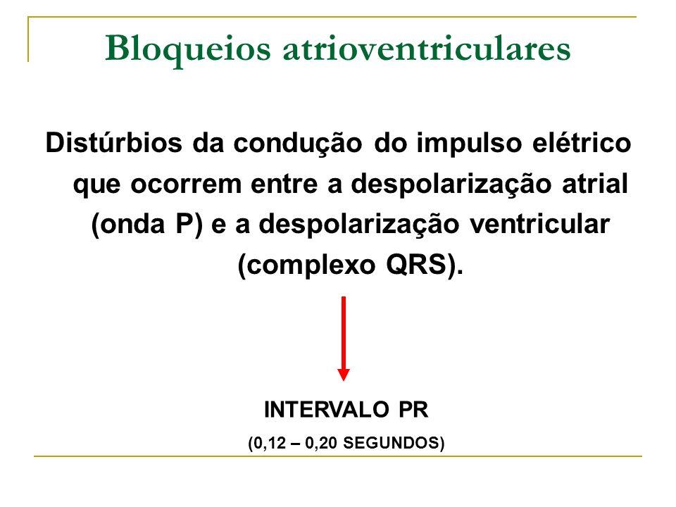 Bloqueios atrioventriculares Distúrbios da condução do impulso elétrico que ocorrem entre a despolarização atrial (onda P) e a despolarização ventricu