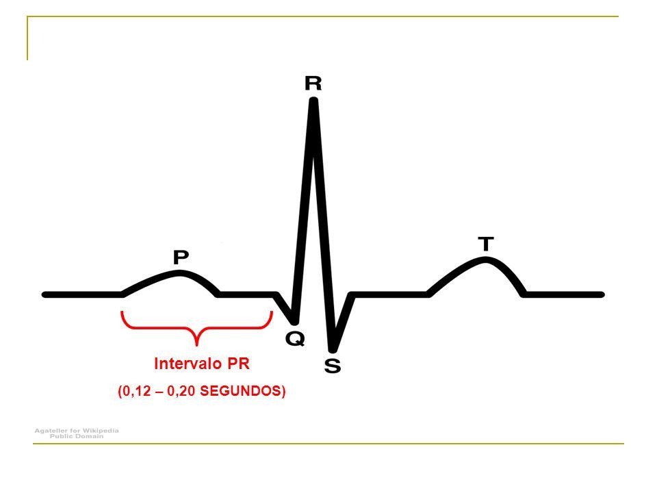 Bloqueios atrioventriculares (BAVs) Primeiro grau; Segundo grau: - Mobitz tipo I (Wenckebach); - Mobitz tipo II; - Variante tipo 2:1; Terceiro grau (total).