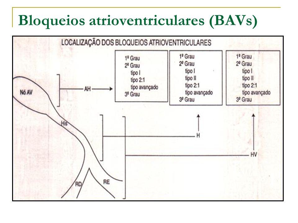 Bloqueio AV de 1º grau Retardo na condução do estímulo atrial; Todos os estímulos são conduzidos para os ventrículos Intervalo PR > 0,20 segundos; Intervalo R-R regular;