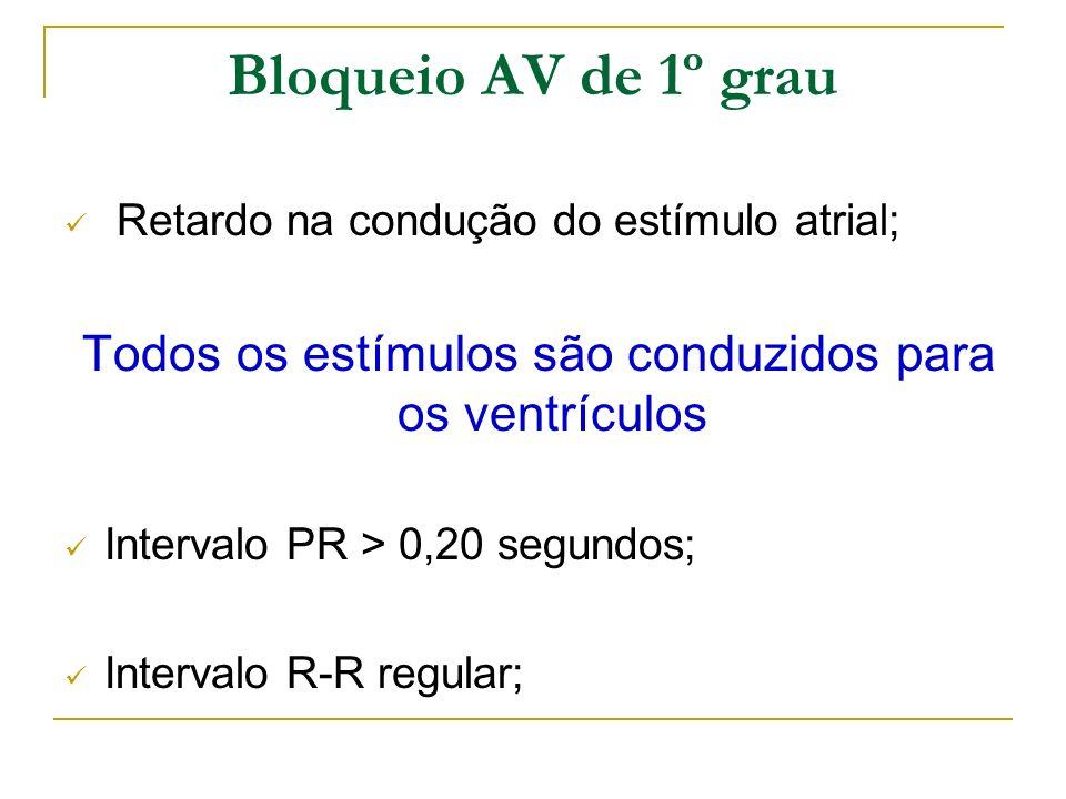 Bloqueio AV de 1º grau Retardo na condução do estímulo atrial; Todos os estímulos são conduzidos para os ventrículos Intervalo PR > 0,20 segundos; Int