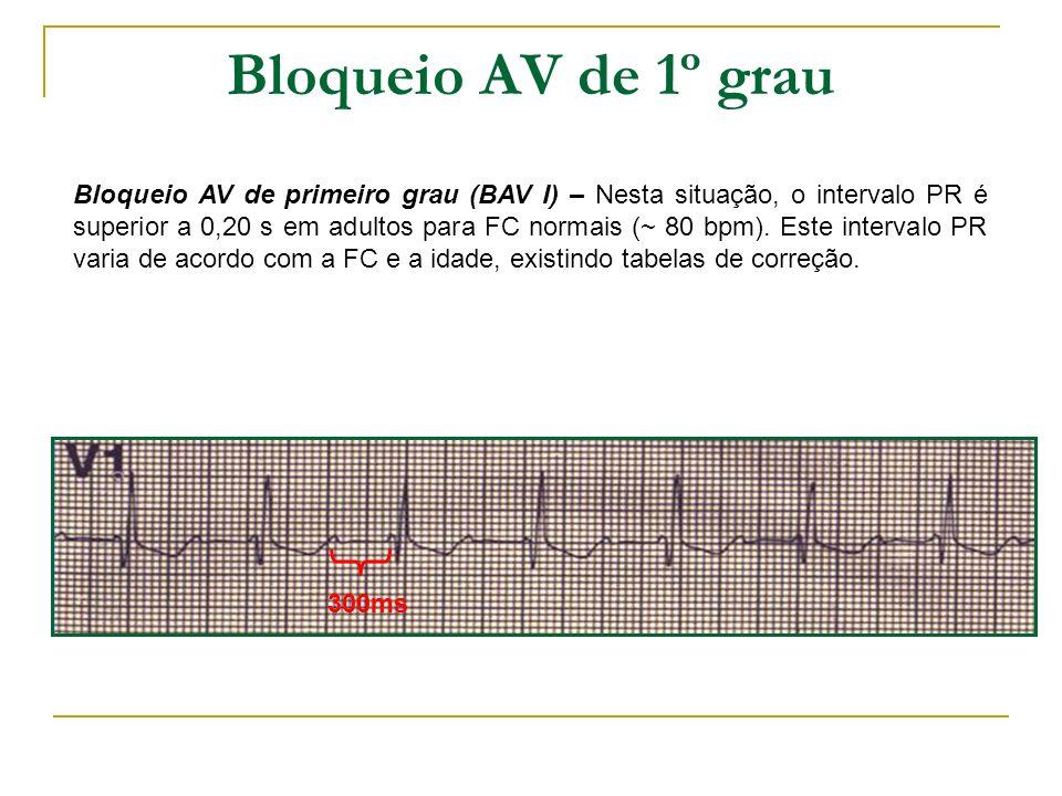 Bloqueio AV de 1º grau Bloqueio AV de primeiro grau (BAV I) – Nesta situação, o intervalo PR é superior a 0,20 s em adultos para FC normais (~ 80 bpm)