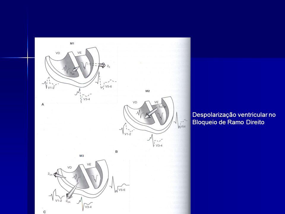 Despolarização ventricular no Bloqueio de Ramo Direito