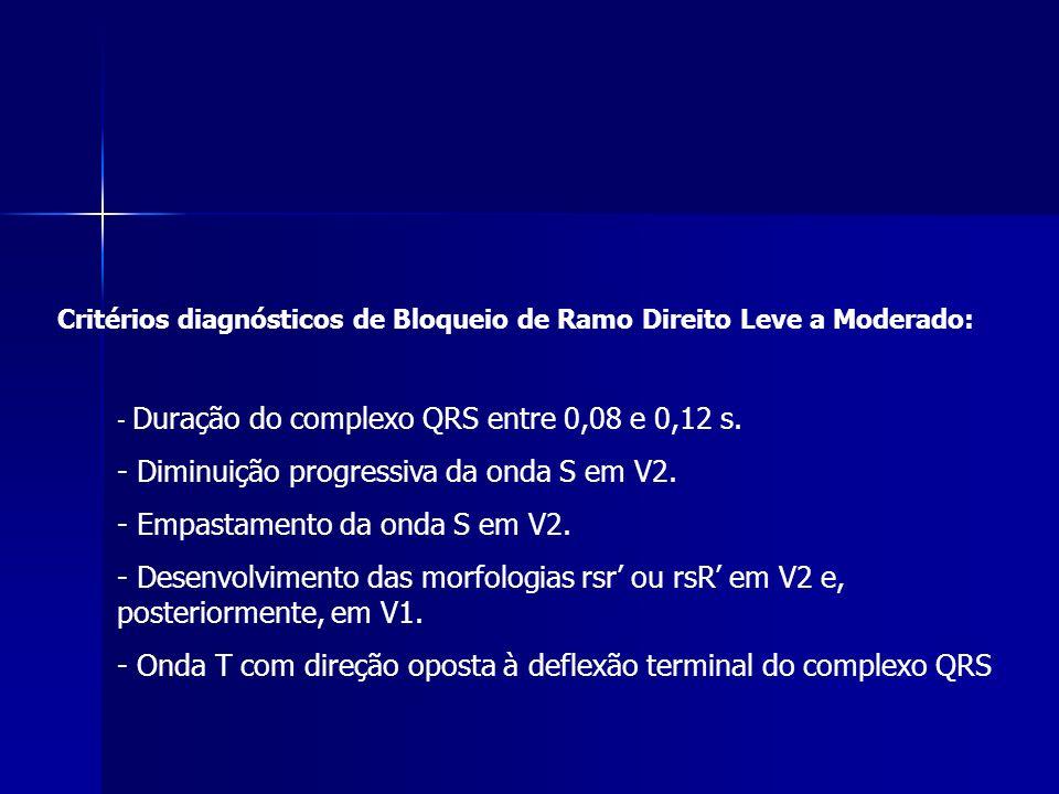 Critérios diagnósticos de Bloqueio de Ramo Direito Leve a Moderado: - Duração do complexo QRS entre 0,08 e 0,12 s.