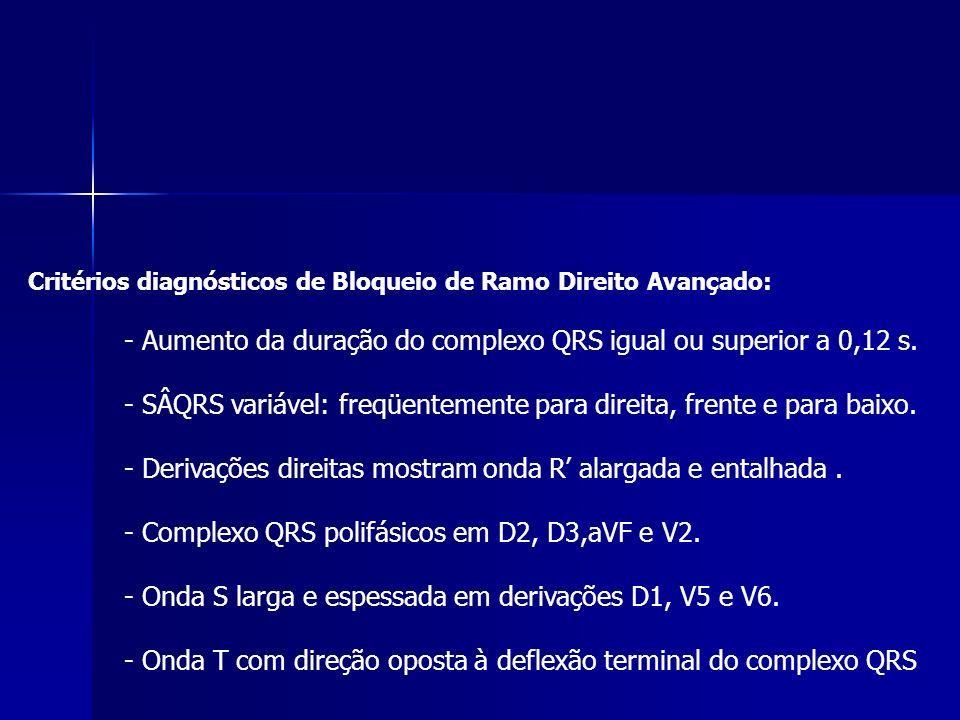 Critérios diagnósticos de Bloqueio de Ramo Direito Avançado: - Aumento da duração do complexo QRS igual ou superior a 0,12 s.