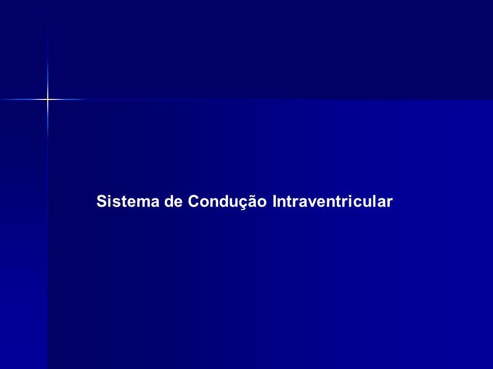 Sistema de Condução Intraventricular