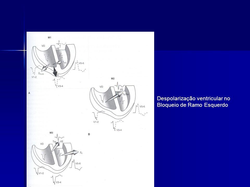 Despolarização ventricular no Bloqueio de Ramo Esquerdo