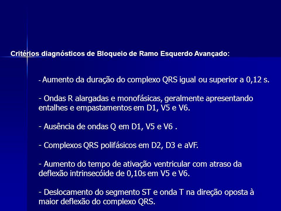 Critérios diagnósticos de Bloqueio de Ramo Esquerdo Avançado: - Aumento da duração do complexo QRS igual ou superior a 0,12 s.