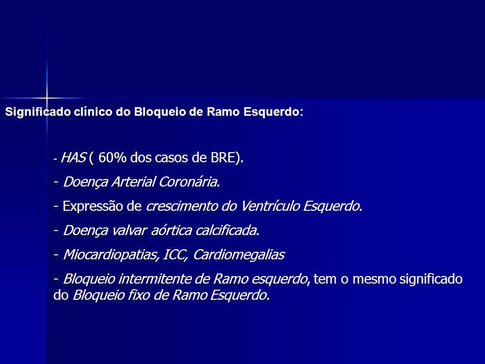 Significado clínico do Bloqueio de Ramo Esquerdo: - HAS ( 60% dos casos de BRE).