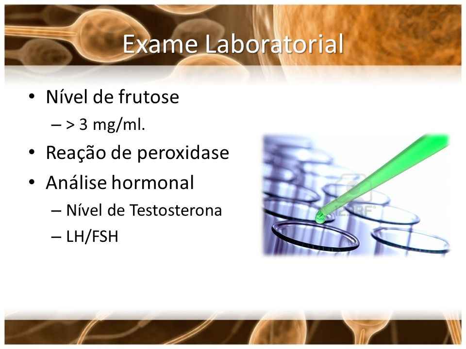Exame Laboratorial Nível de frutose – > 3 mg/ml. Reação de peroxidase Análise hormonal – Nível de Testosterona – LH/FSH