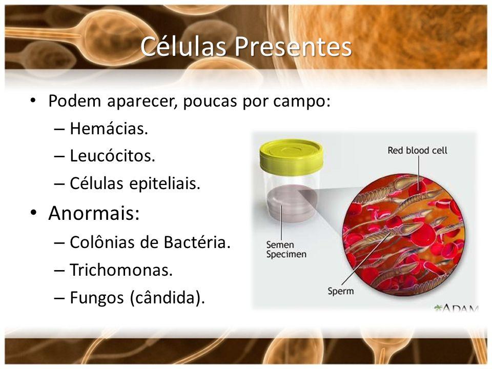 Células Presentes Podem aparecer, poucas por campo: – Hemácias. – Leucócitos. – Células epiteliais. Anormais: – Colônias de Bactéria. – Trichomonas. –