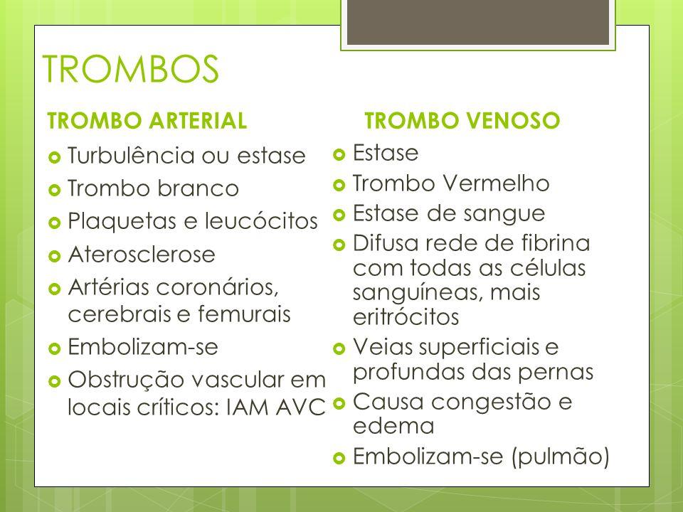 TROMBOS TROMBO ARTERIAL Turbulência ou estase Trombo branco Plaquetas e leucócitos Aterosclerose Artérias coronários, cerebrais e femurais Embolizam-s