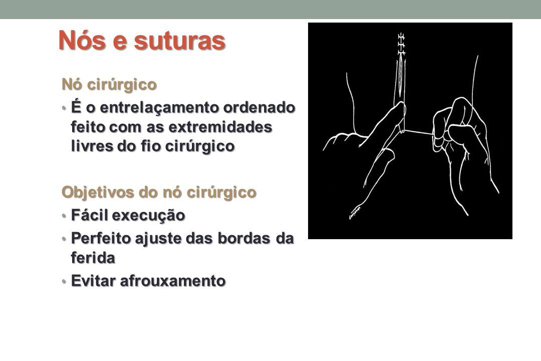 Nós e suturas Nó cirúrgico É o entrelaçamento ordenado feito com as extremidades livres do fio cirúrgico É o entrelaçamento ordenado feito com as extremidades livres do fio cirúrgico Objetivos do nó cirúrgico Fácil execução Fácil execução Perfeito ajuste das bordas da ferida Perfeito ajuste das bordas da ferida Evitar afrouxamento Evitar afrouxamento