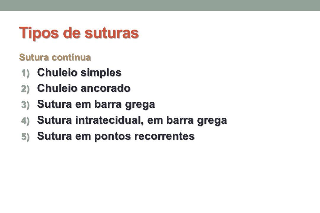 Tipos de suturas Sutura contínua 1) Chuleio simples 2) Chuleio ancorado 3) Sutura em barra grega 4) Sutura intratecidual, em barra grega 5) Sutura em pontos recorrentes