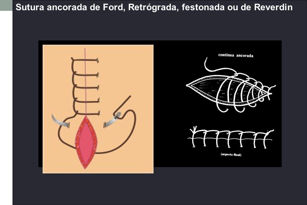Sutura ancorada de Ford, Retrógrada, festonada ou de Reverdin