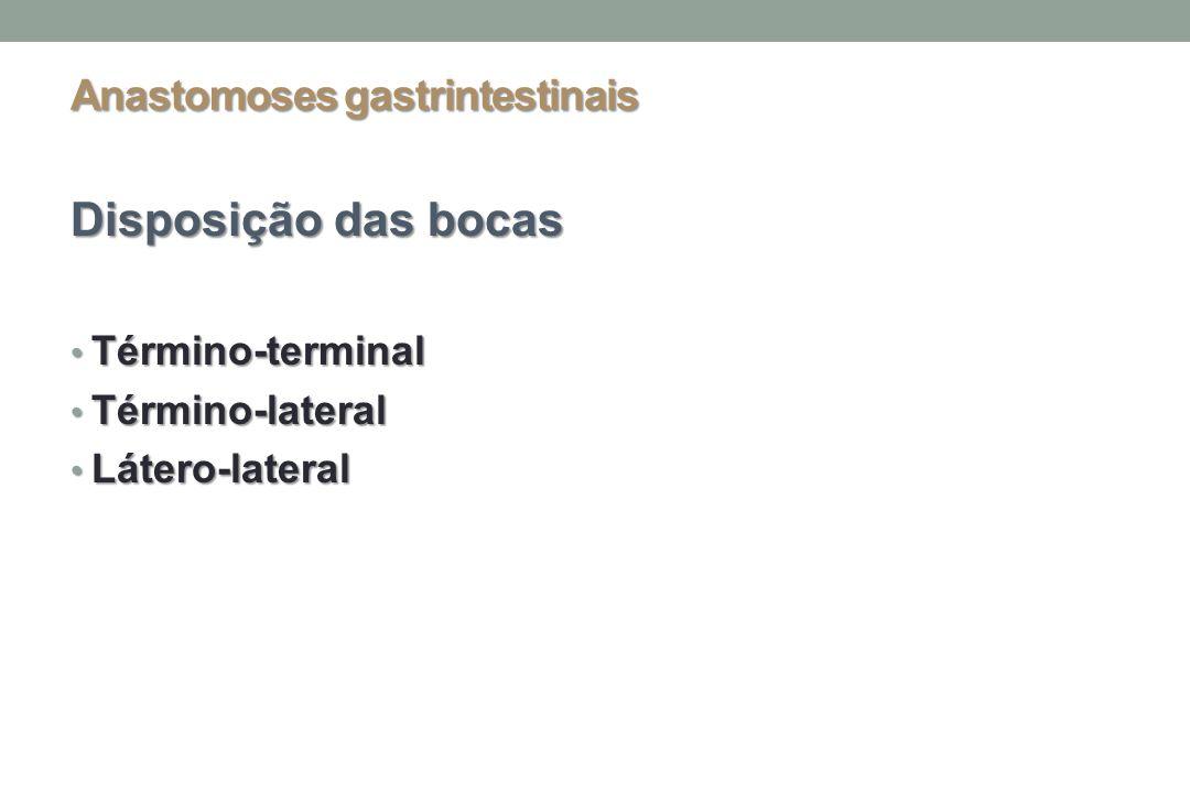 Anastomoses gastrintestinais Disposição das bocas Término-terminal Término-terminal Término-lateral Término-lateral Látero-lateral Látero-lateral