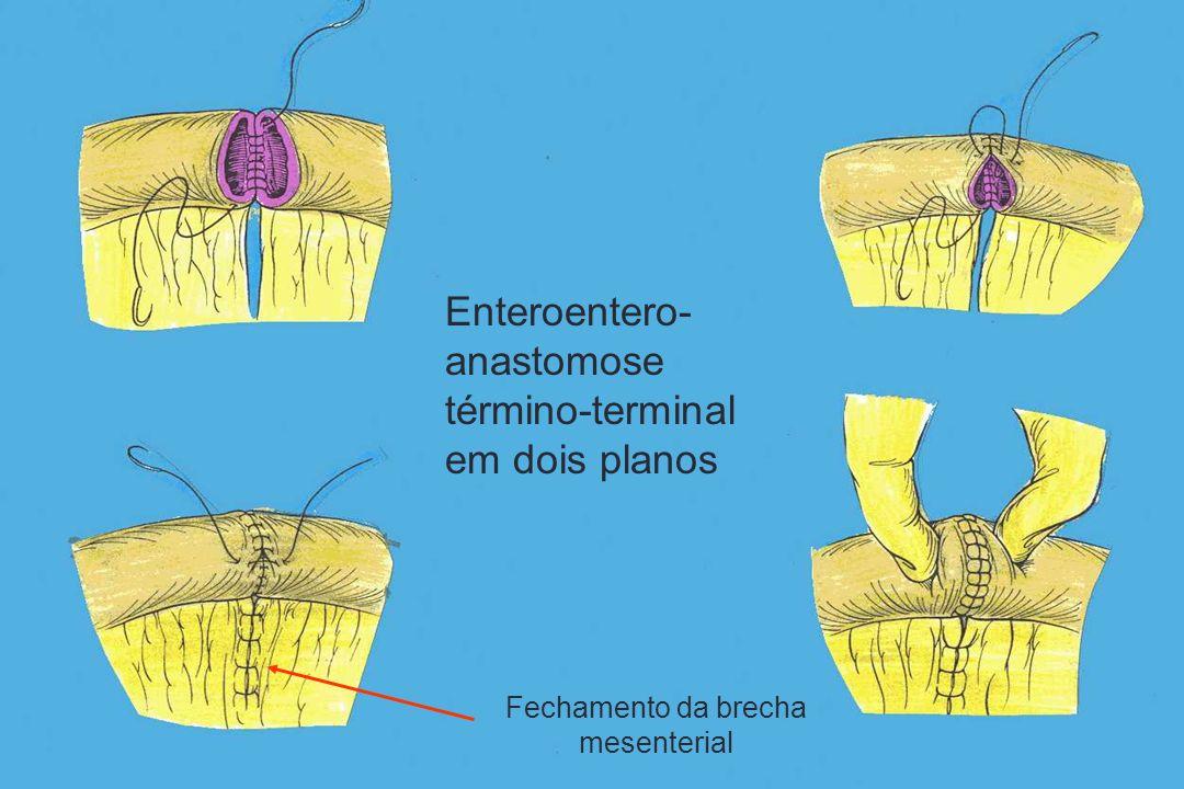 Enteroentero- anastomose término-terminal em dois planos Fechamento da brecha mesenterial