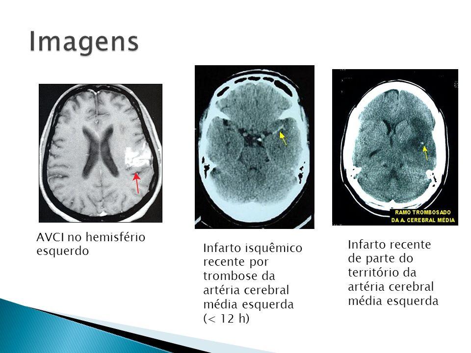AVCI no hemisfério esquerdo Infarto isquêmico recente por trombose da artéria cerebral média esquerda (< 12 h) Infarto recente de parte do território da artéria cerebral média esquerda