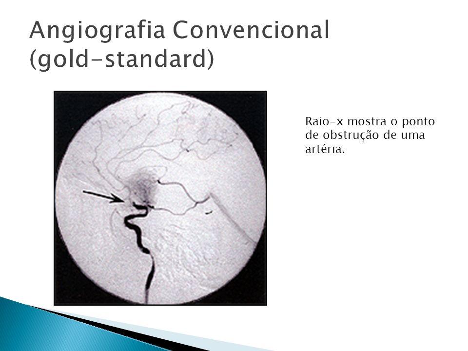 Raio-x mostra o ponto de obstrução de uma artéria.