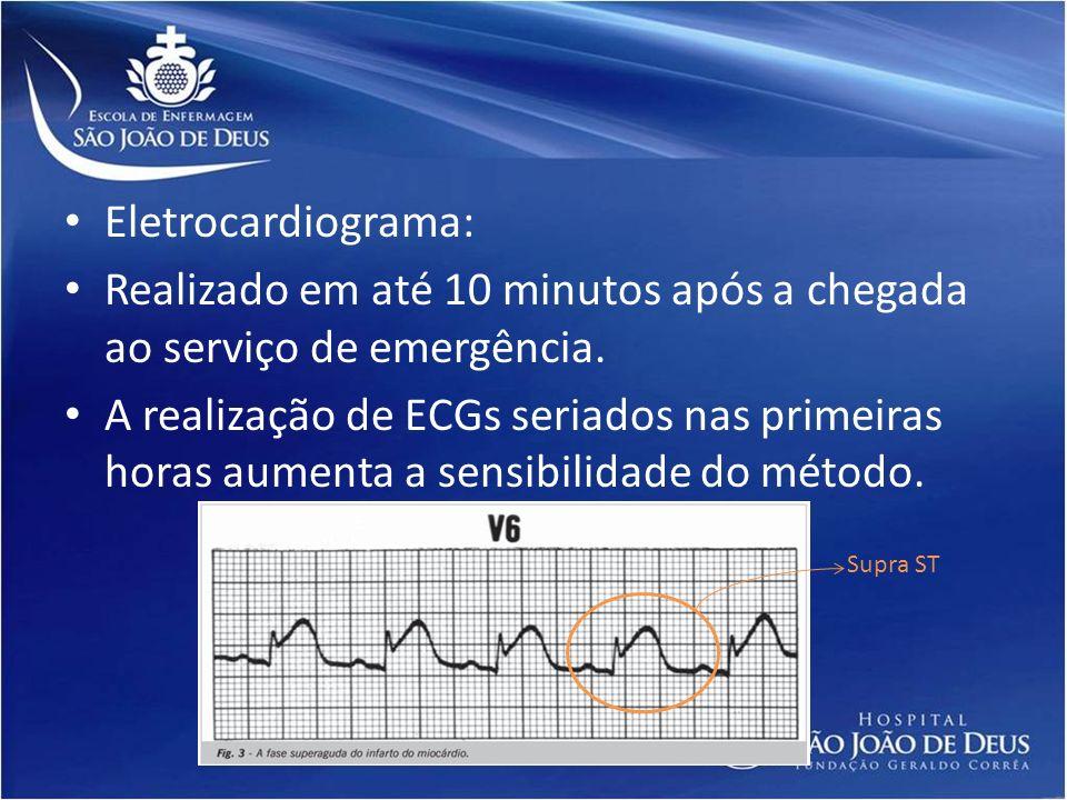 Eletrocardiograma: Realizado em até 10 minutos após a chegada ao serviço de emergência. A realização de ECGs seriados nas primeiras horas aumenta a se