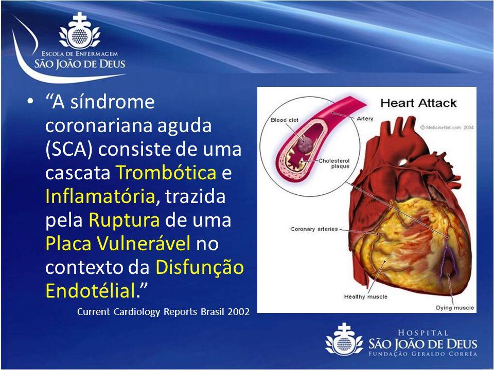 A síndrome coronariana aguda (SCA) consiste de uma cascata Trombótica e Inflamatória, trazida pela Ruptura de uma Placa Vulnerável no contexto da Disf